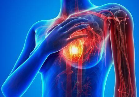 心筋梗塞の前兆と症状について!心筋梗塞の前兆のサインで予防・治療することができる!!