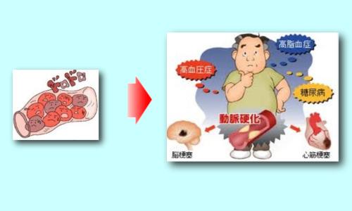 ドロドロ血液が心臓や脳の病気を引き起こす!見直したい生活習慣とは!?