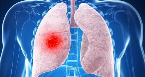 あなたは大丈夫?肺がんになっている可能性がある人に表れる7つの症状とは!?
