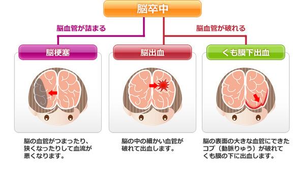 くも膜下出血は大変怖い病気!発症すると30%の人が死亡する!?くも膜下出血の原因と症状とは?